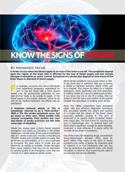 Signs of a possible stroke